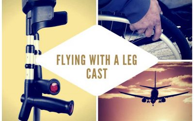 Flying With A Leg Cast