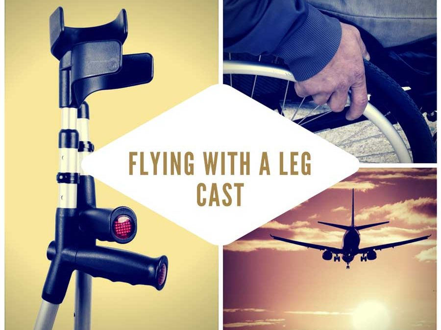 Flying With A Leg Cast - travelephant